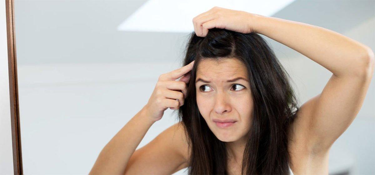1255-Can-Dandruff-Cause-Hair-Loss-1200x560.jpg