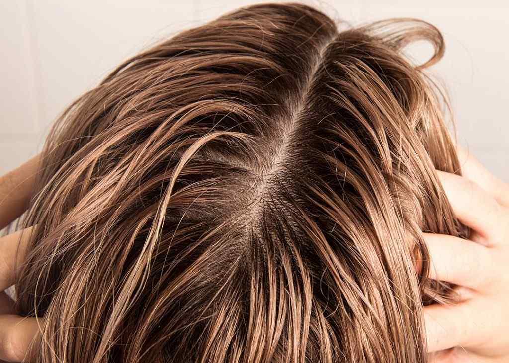 Best-Dandruff-Shampoo-For-Oily-Hair.jpg